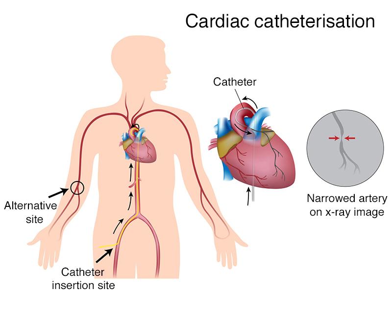 القسطرة القلبية