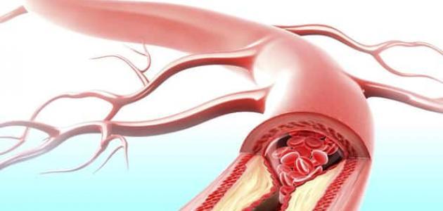 مشاكل الأوعية الدموية وعلاجها