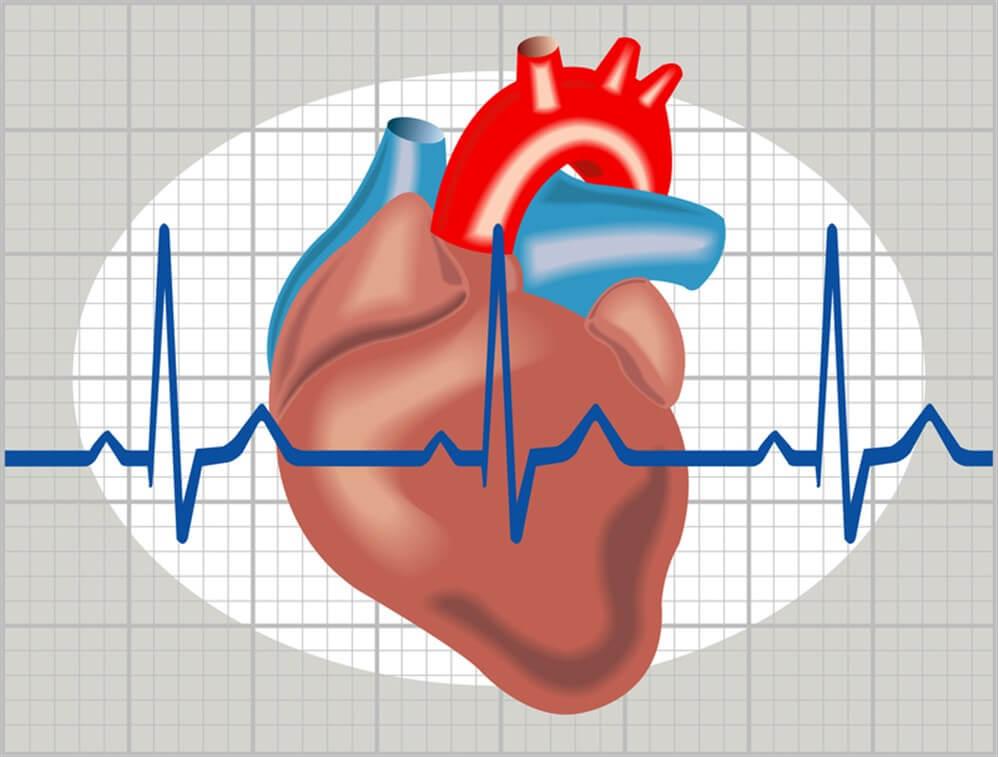 القسطرة القلبية التشخيصية