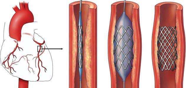 ما هي القسطرة القلبية والشبكةو أنواعها