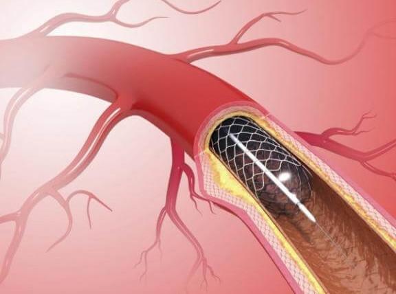 تركيب القسطرة القلبيةو خطوات الاستعداد لاجراء العملية ونصائح لما بعدها