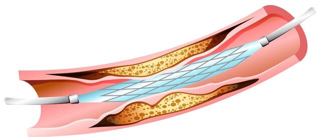 تعرف على شكل القسطرة القلبية و كيف يتم ادخالها في جسم المريض