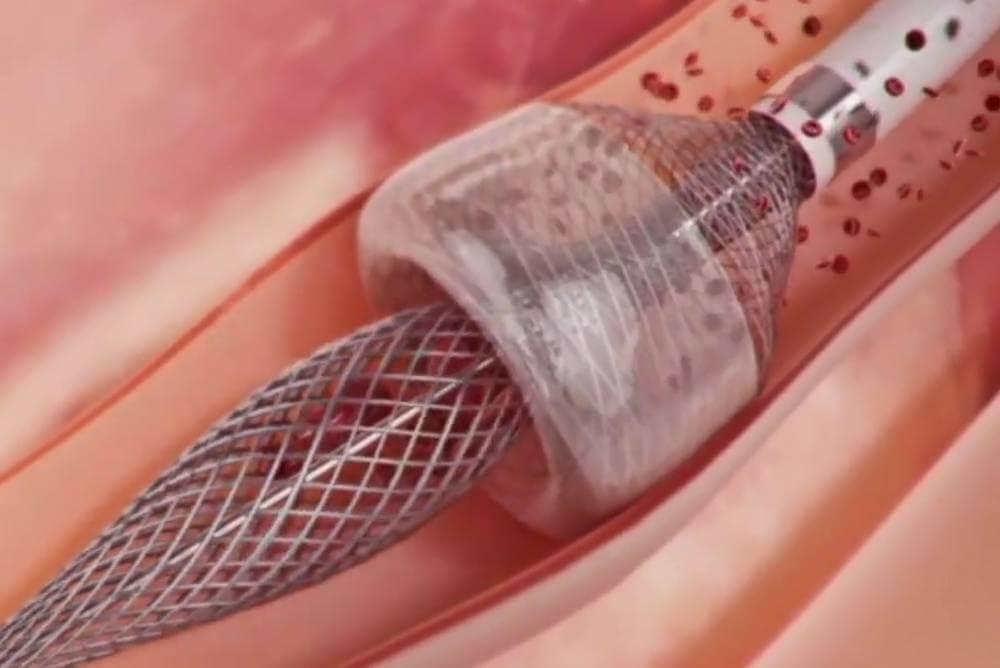 ما هي القسطرة القلبية