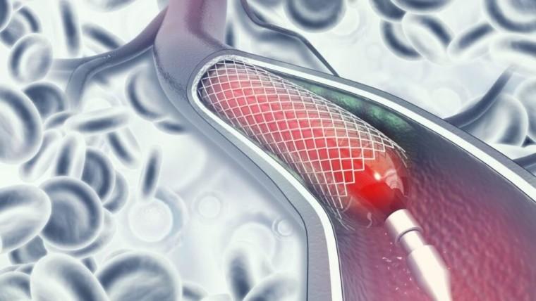 القسطرة القلبية العلاجية