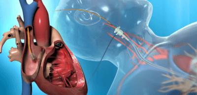 القسطرة القلبية والدعامات