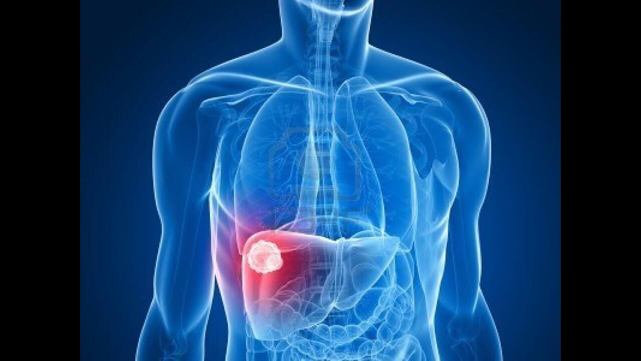 أمراض الكبد وأعراضها