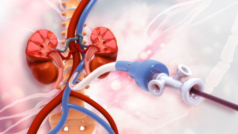 ما هي القسطرة القلبية وما هي انواعها ومخاطرها؟