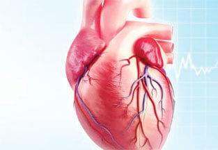 شكل القسطرة القلبية