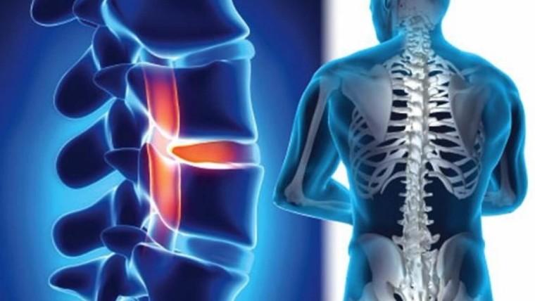 ما هو دور الأشعة التداخلية لعلاج مشاكل العمود الفقري ؟
