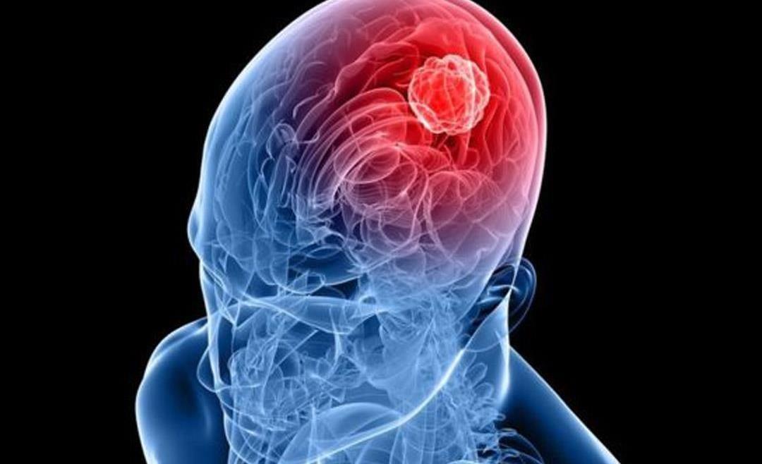 ما هي أسعار الأشعة التداخلية على المخ ؟