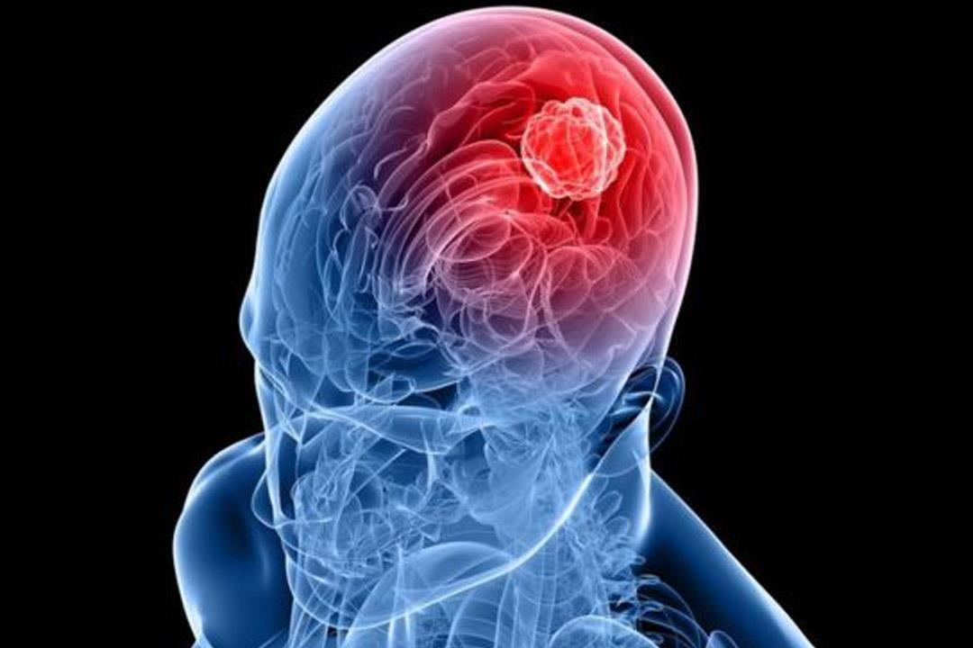 أسعار الأشعة التداخلية على المخ