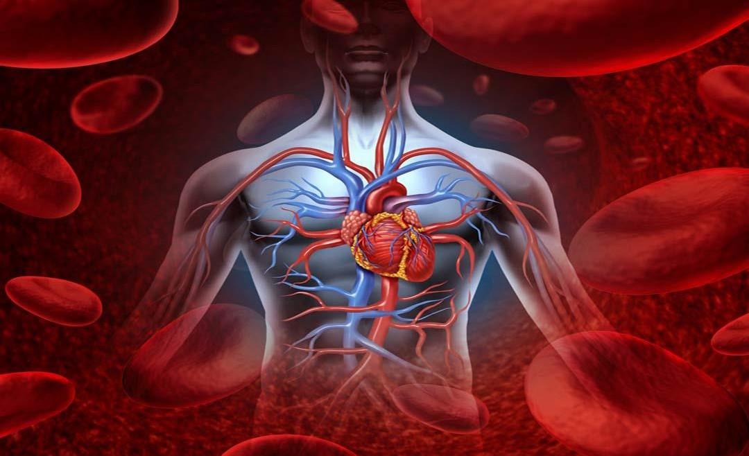 علاج أمراض الأوعية الدموية بالأشعة التداخلية بدون جراحة