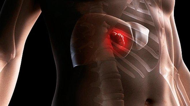تعرف على تكلفة الأشعة التداخلية لعلاج الكبد بدون جراحة