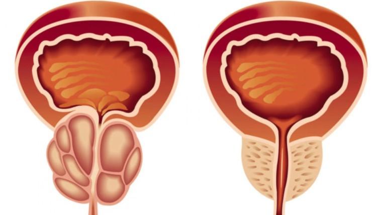 ما هي تكلفة عملية قسطرة البروستاتا بدون جراحة؟