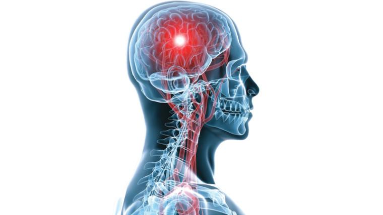 أسباب تصلب الشرايين في الدماغ وطرق علاجها
