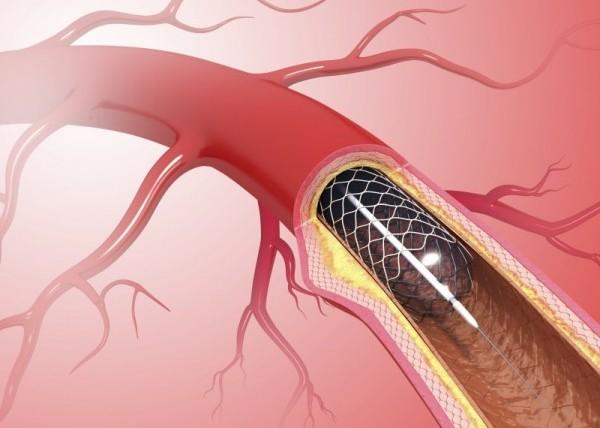 ما هي أعراض انسداد دعامة القلب وعلاجها بدون جراحة؟