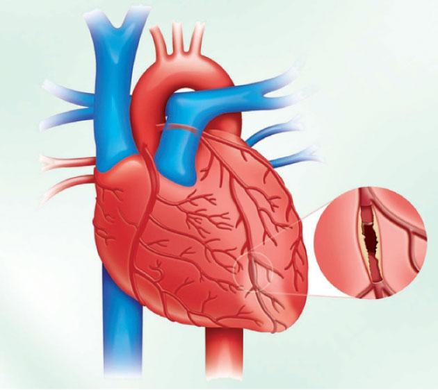 القسطرة القلبية واسبابها وأنواعها ودواعي إستخدامها