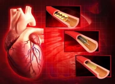 سعر القسطرة القلبية