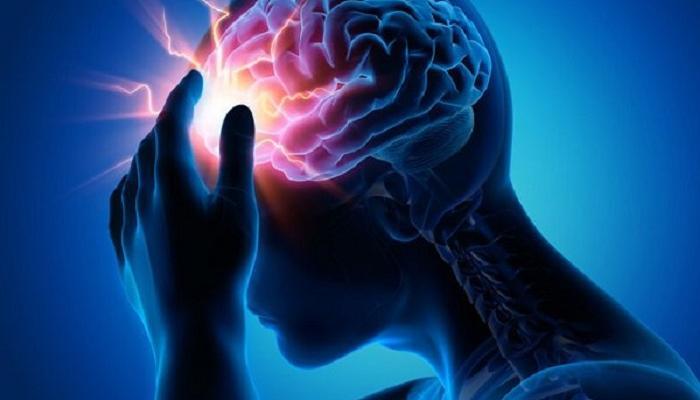 أسباب التهاب الأوعية الدموية في الدماغ وعلاجها بدون جراحة