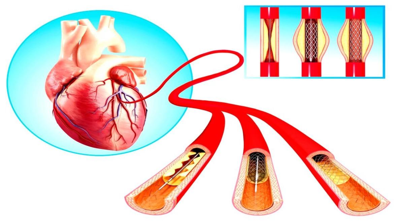 تكلفة القسطرة القلبية في مصر