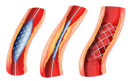 القسطرة القلبية وانواعها لعلاج تخثر الدم بدون جراحة