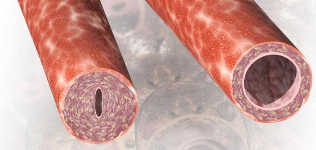 علاج مرض الاوعية الدموية بدون جراحة