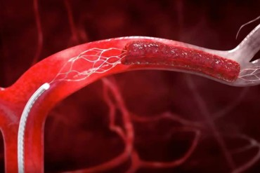 علاج مشاكل الاوعية الدموية