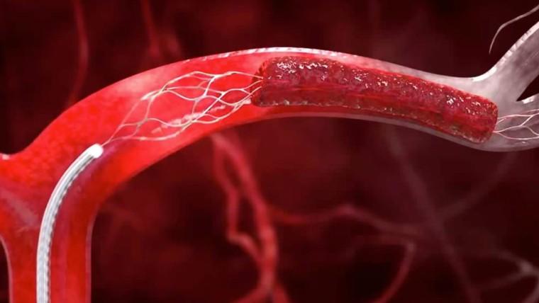 علاج مشاكل الاوعية الدموية بدون جراحة أو مضاعفات