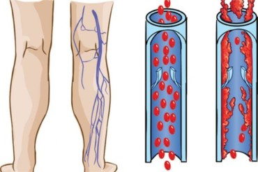 ما هو علاج الاوعية الدموية