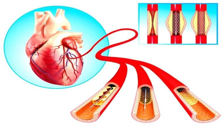 أسعار القسطرة القلبية العلاجية
