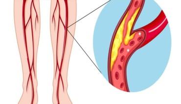 أفضل طرق علاج مرض الاوعية الدموية المحيطية
