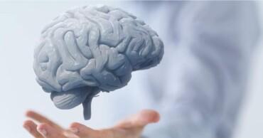 الأشعة التداخلية للمخ