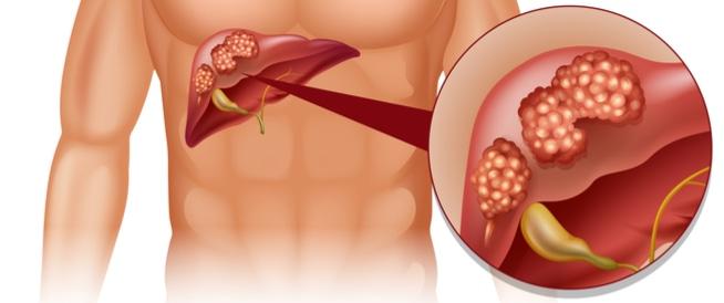 نسبة الشفاء من سرطان البنكرياس – مركز شفاء