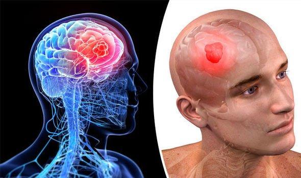 أشهر أعراض سرطان المخ