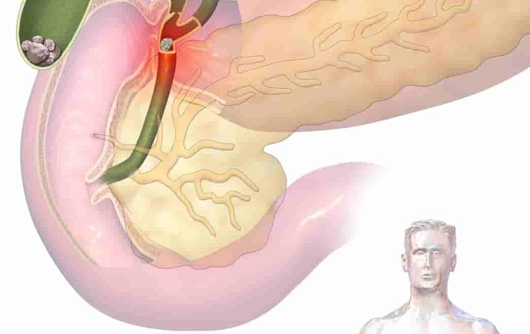 أشهر 10 أسباب التهاب القنوات المرارية وعلاجها | شفاء