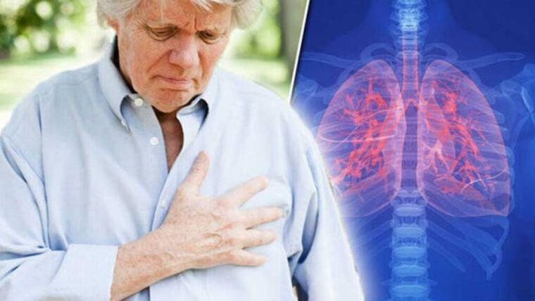 أشهر 7 أعراض سرطان الرئة وطرق علاجه | مركز شفاء