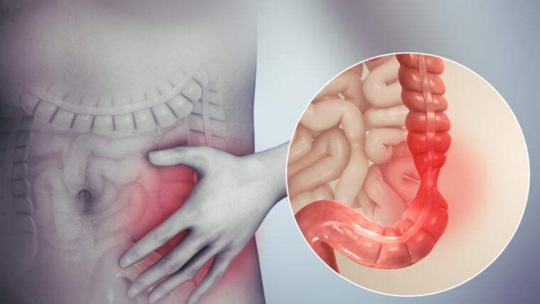 أشهر 6 أعراض القولون العصبي وطرق علاجها | مركز شفاء